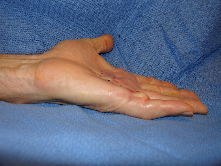 Dupuytren's Contracture after treatment